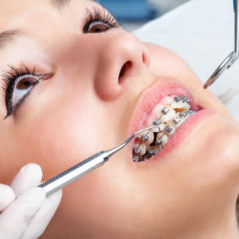 洗牙后不能漱口吗洗牙后的护理措施